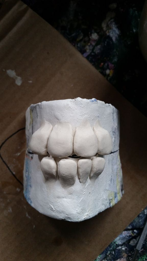 Picture of Dental Work
