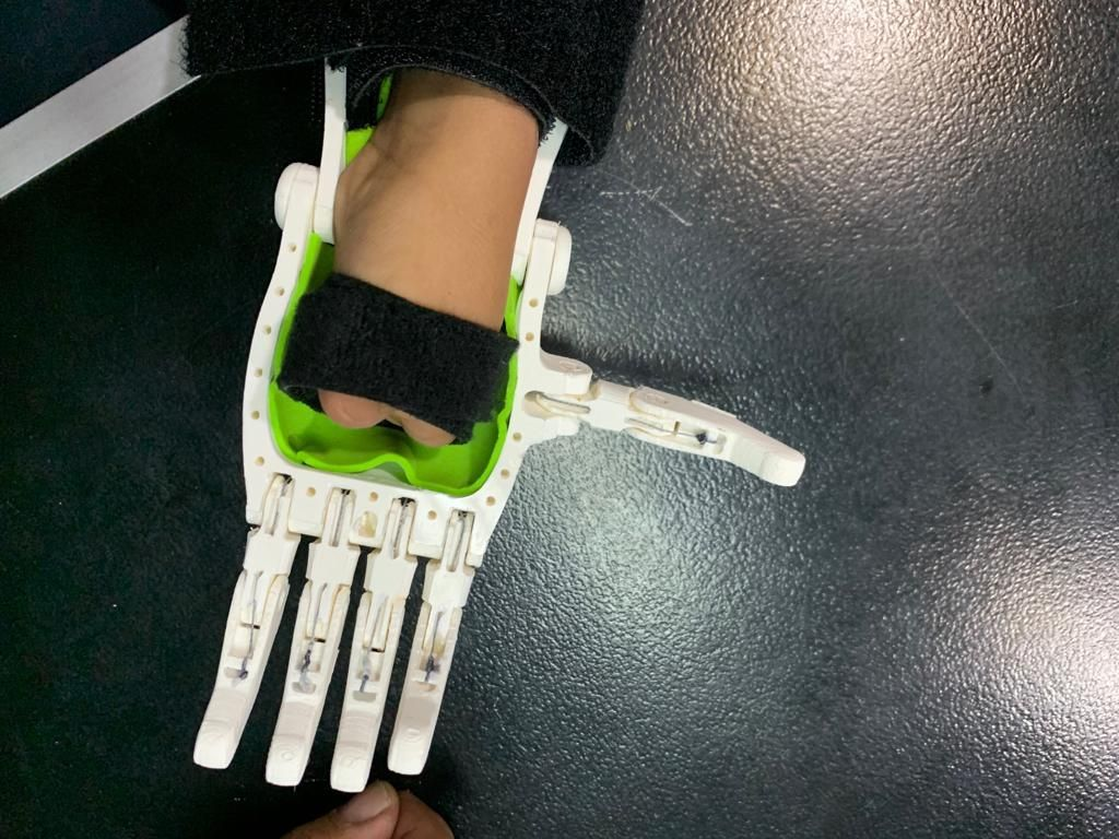 Picture of 3D Print Prosthetic Hands in the Classroom.
