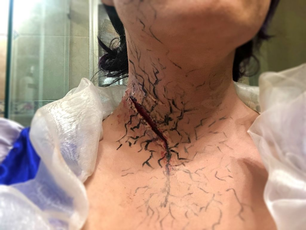 Picture of Blood and Black Veins