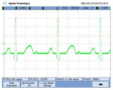 Electrocardiogram Circuit