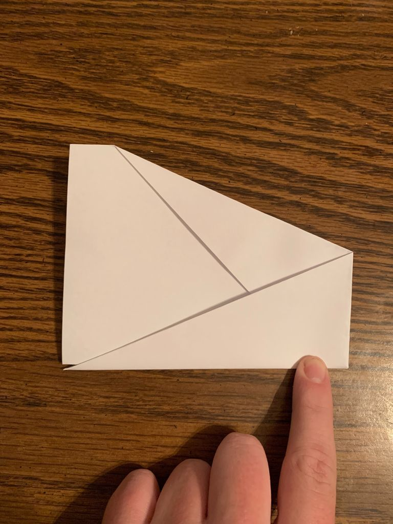 Picture of Nose Fold (part 2)