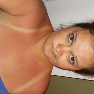 The Single Most Effective Way to Get Rid of a Sunburn