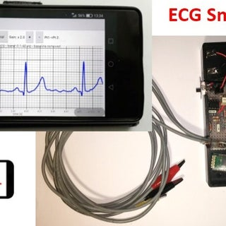 How to Build a Low Cost ECG Device