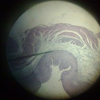 intestine.jpg