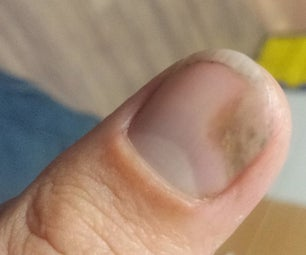 Fungal Infection Treatment-simplest Ever