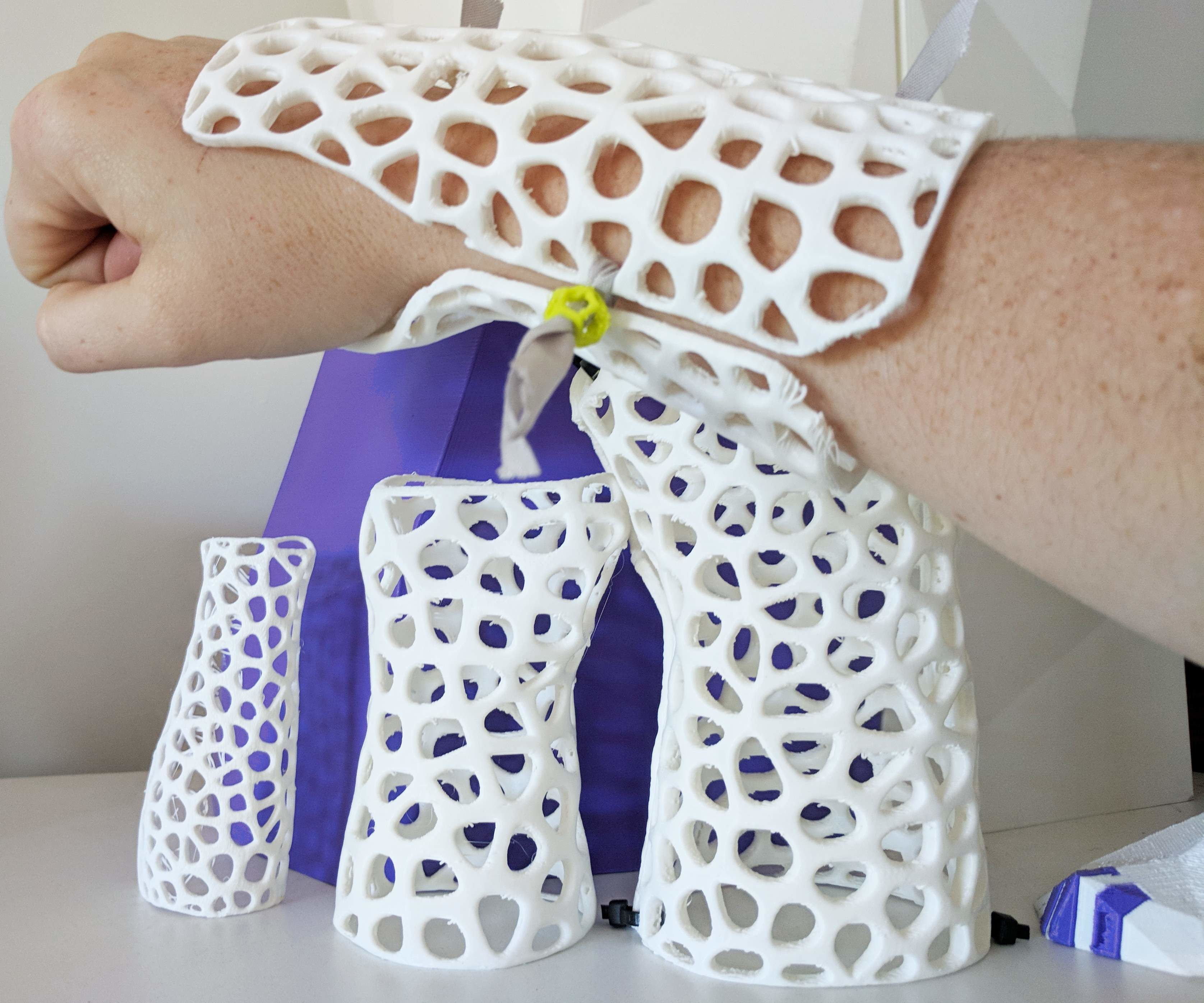 How to Design Custom, 3D Printable Braces for Arm Injury
