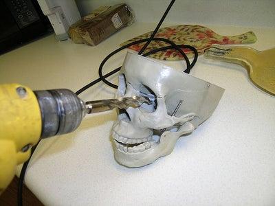 Prep the Skull
