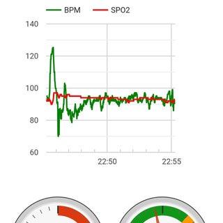 Pulse Oximeter Data Capture With Raspberry Pi