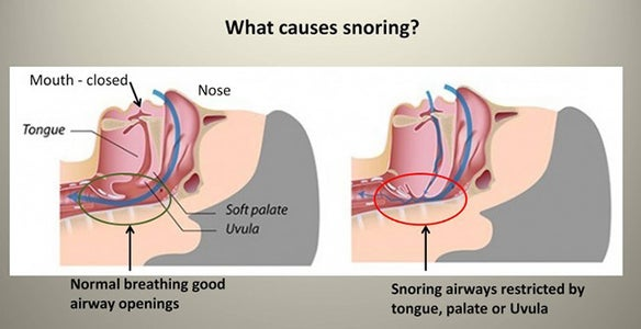 Snore-O-Meter: Using AI to Detect Snores