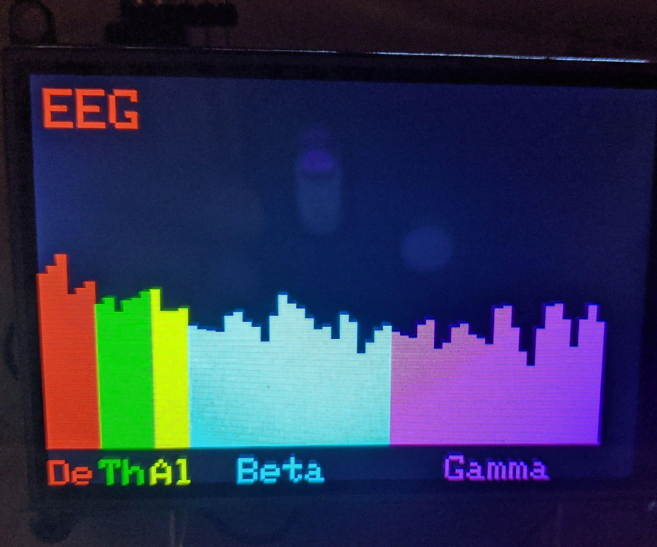 EEG AD8232 Phase 1