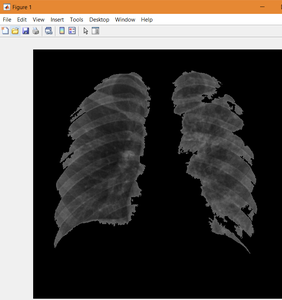 Segmenting the Lungs From the Image