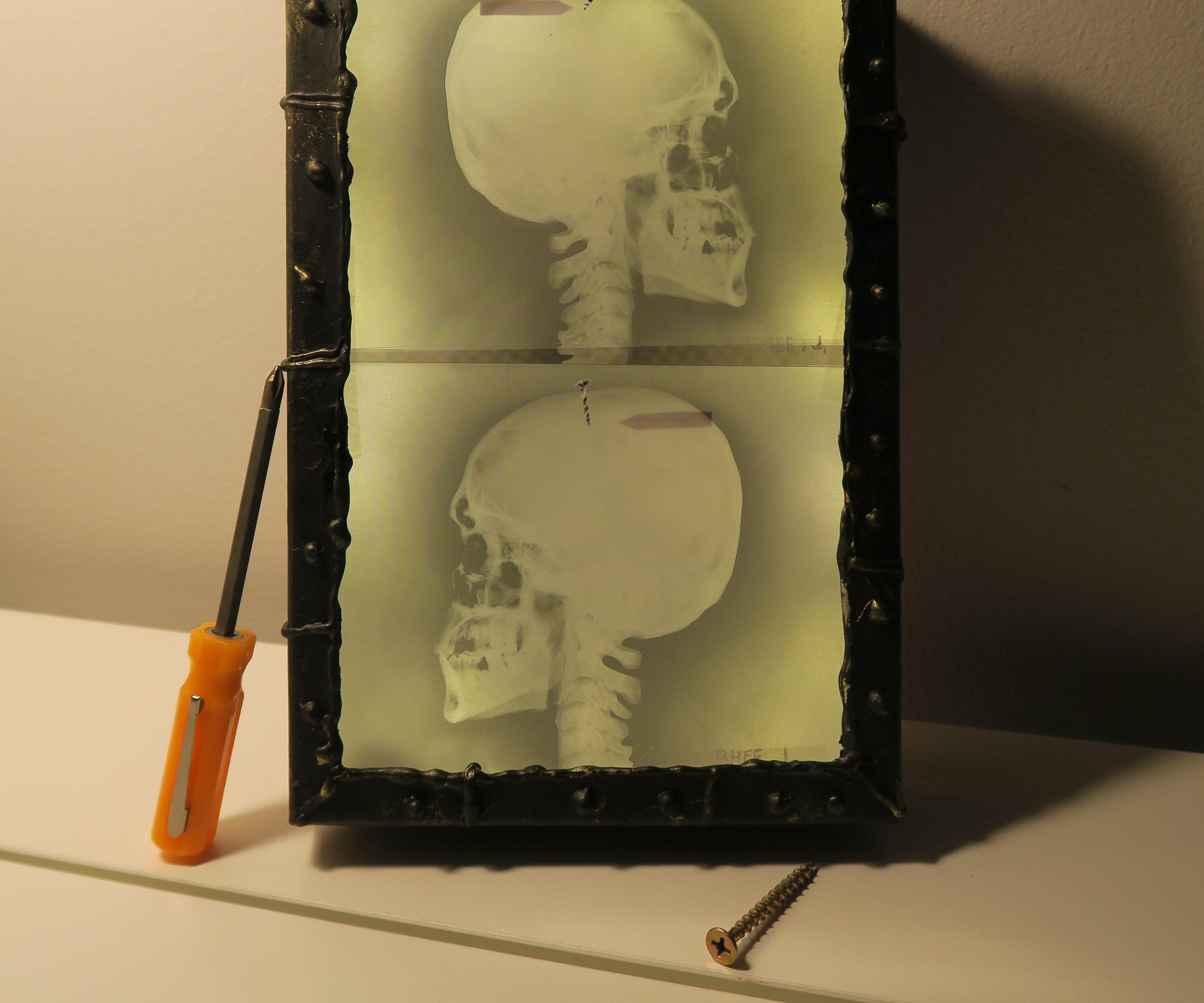 X Ray Light