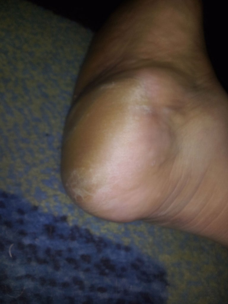 Treating Rough, Dry, Cracked and Calloused Feet.