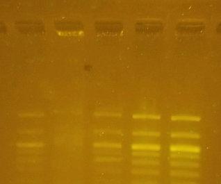 Transilluminator for DNA Gel Electrophoresis