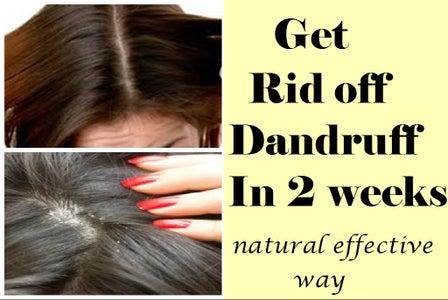 Get Rid Off Dandruff in 2 Weeks-Best & Effective Natural Way