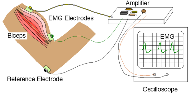 Connecting Your Electrodes