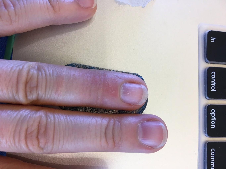 Custom 3D Printed Finger Splint