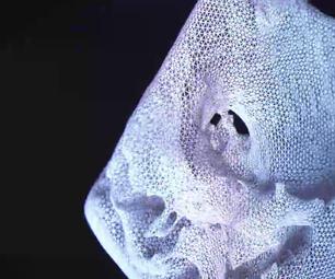 Print Your Heart : 3D Models for Cardiac Valve Disease