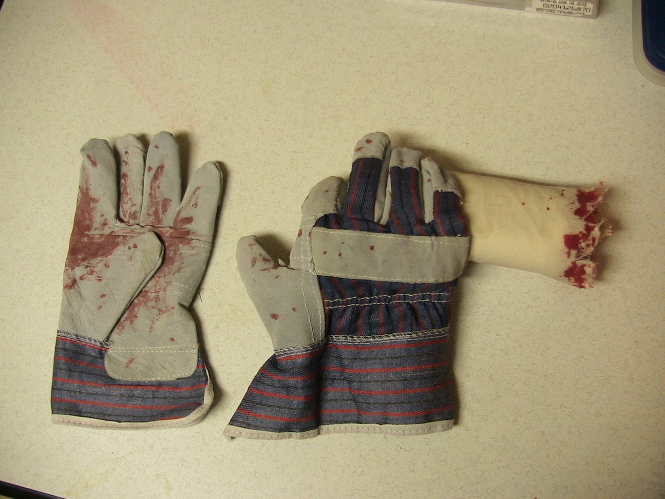 The Living Severed Hand!