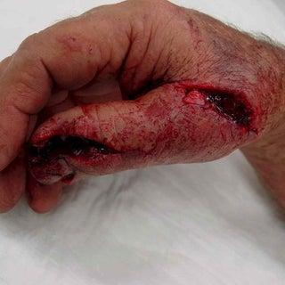 lawnmower-injuries.jpg