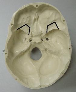 Carving the Cranium