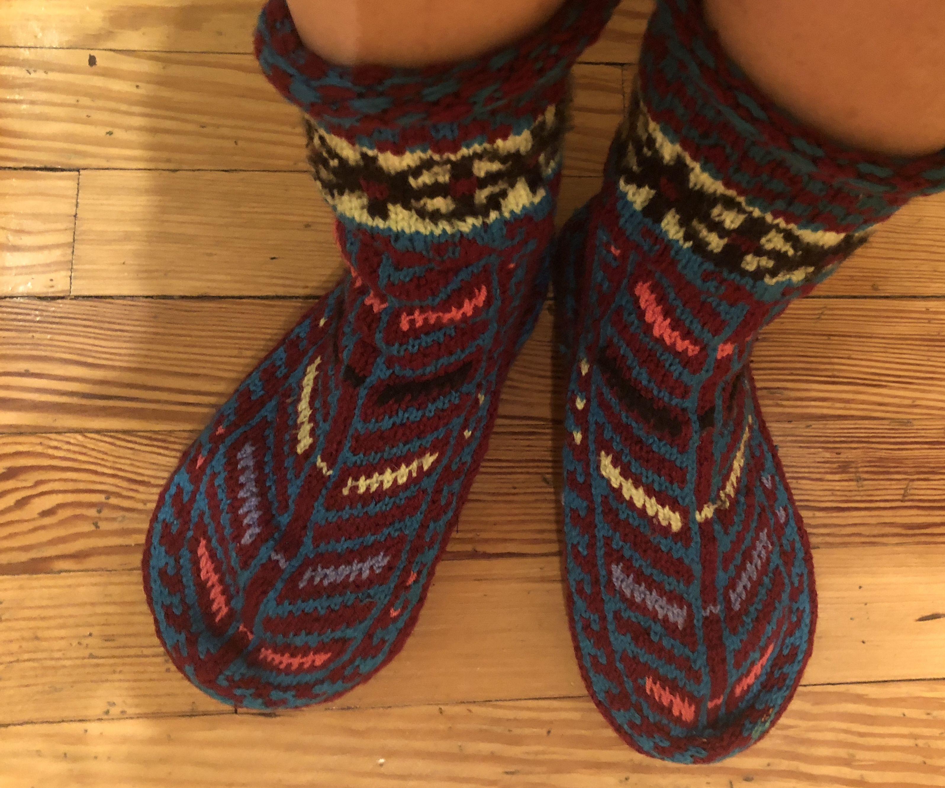 Repairing Holy Wool Slipper Socks W/Needle Felting