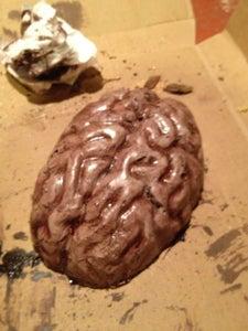 An A. B. Normal Brain