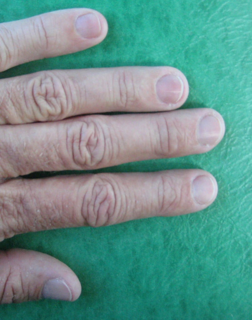 Trim Your Nails to Length
