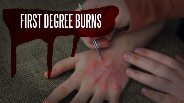 First Degree Burn Makeup