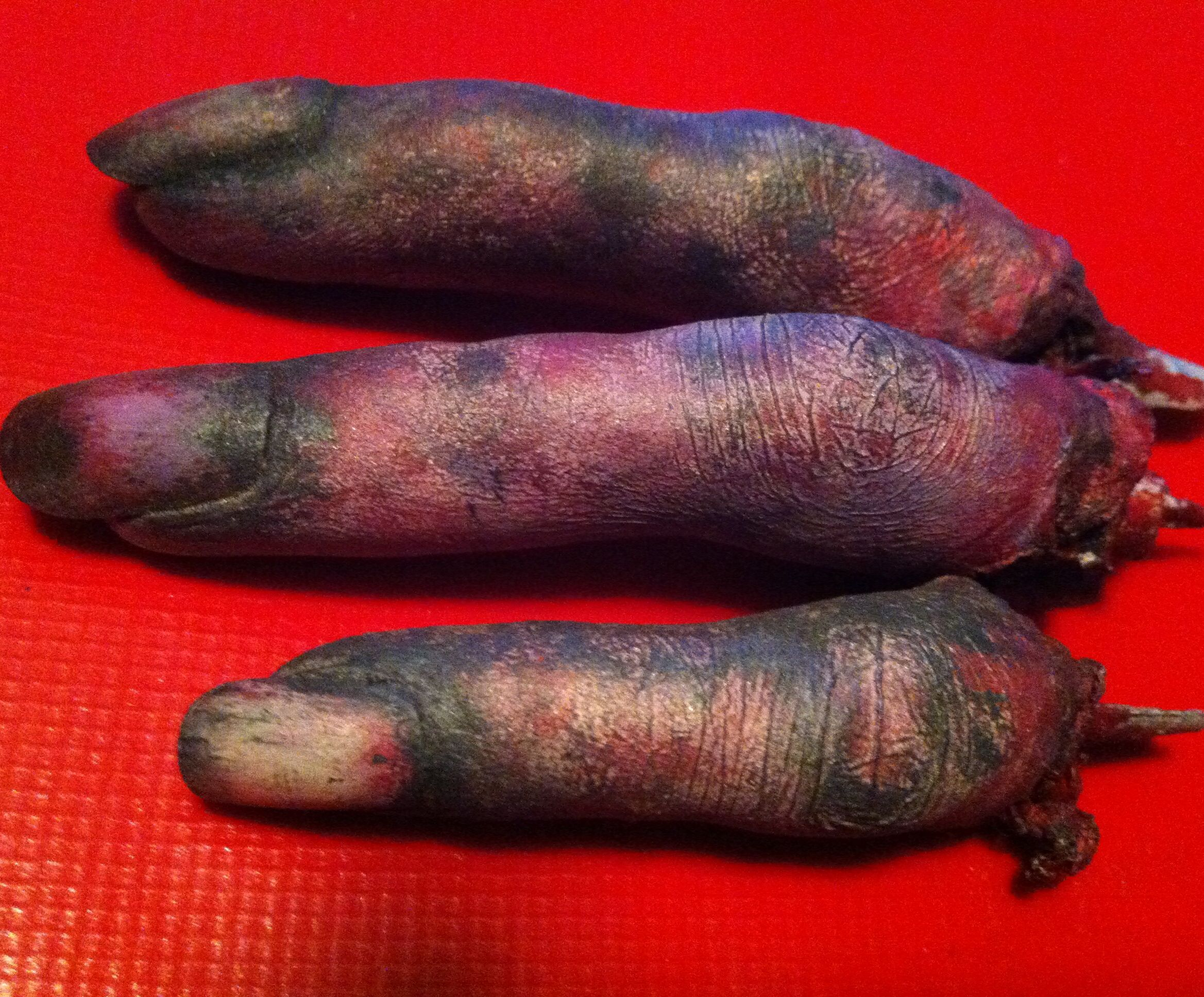 Simple severed fingers