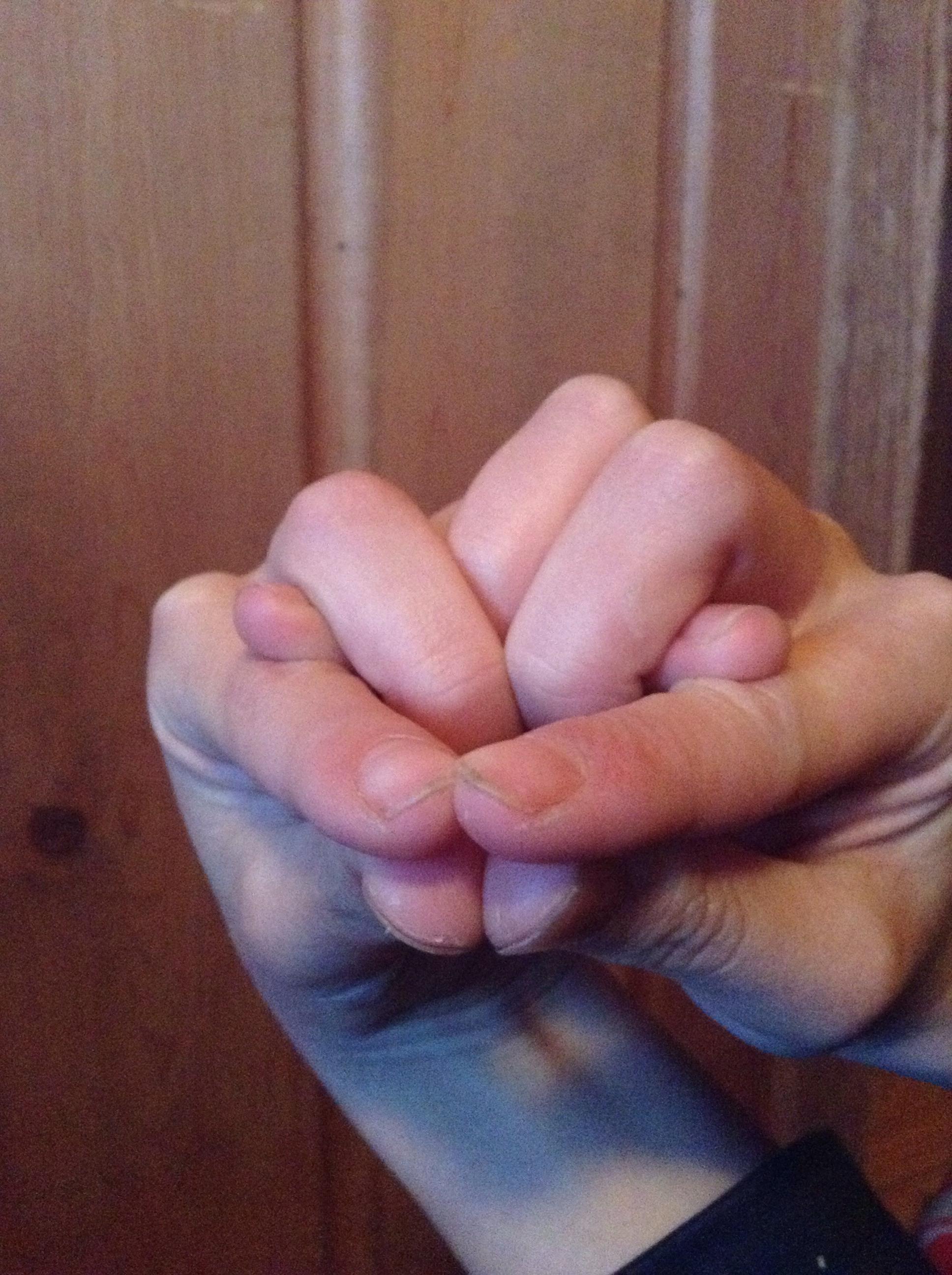 Snake Hands!