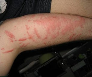 Home Remedy for Poison Ivy/ Poison Oak