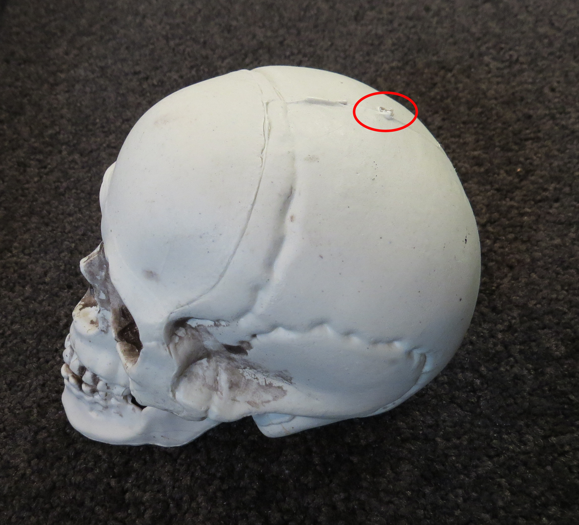 Make Hole in Top of Skull
