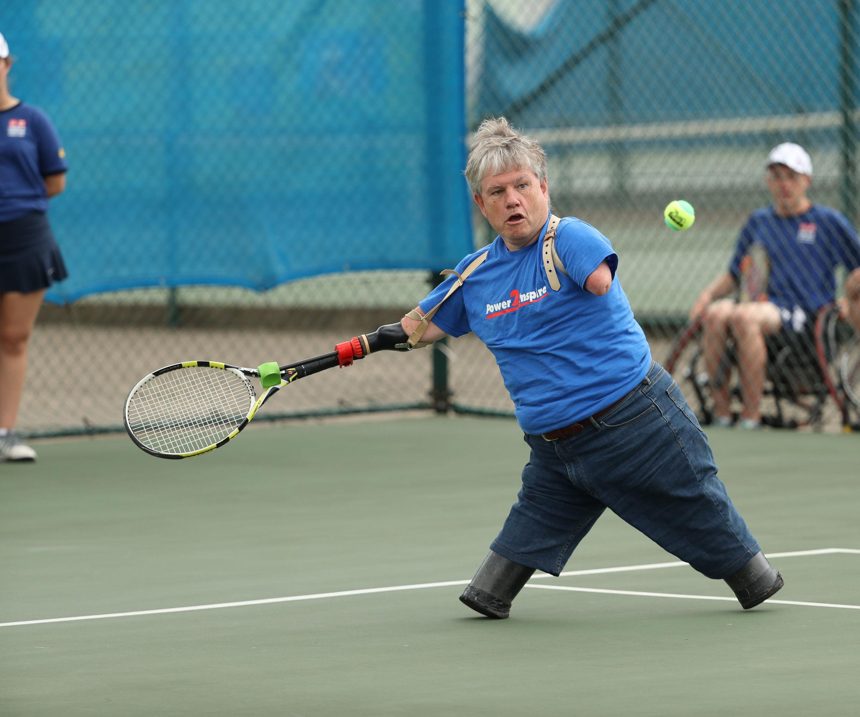 Tennis Prosthetic
