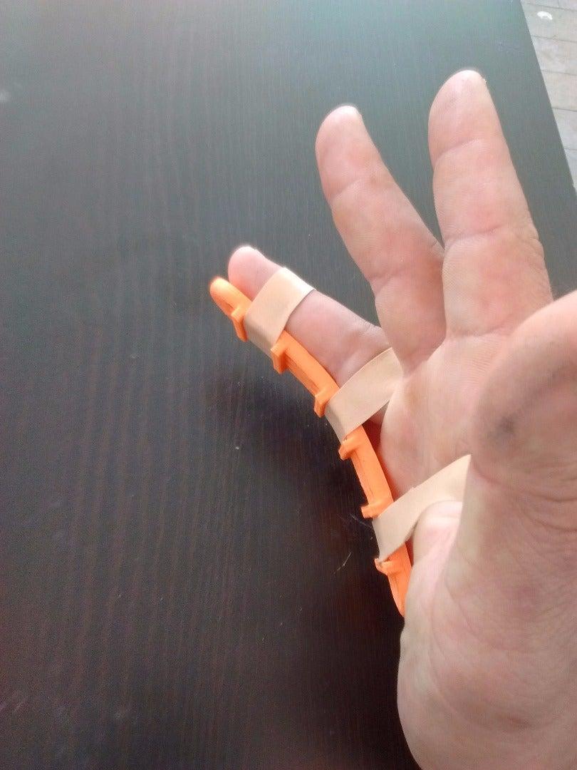 Splint!
