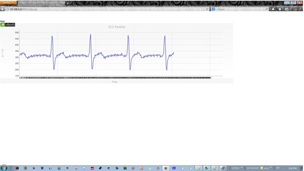 Raspberry Pi Real Time ECG Plotting