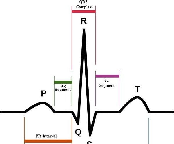 Arduino Portable EKG Monitor