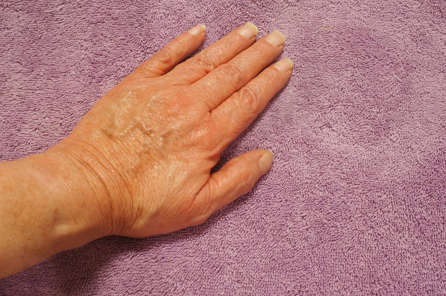 Hand and Foot Hot  Wax Treatment
