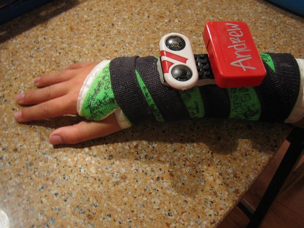 Broken Arm Lego Accessories