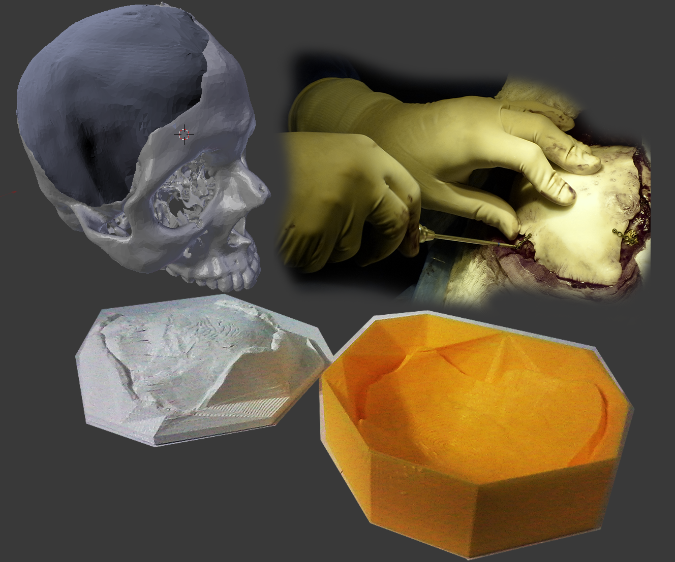 Surgery + Fully 3D Printed Mold