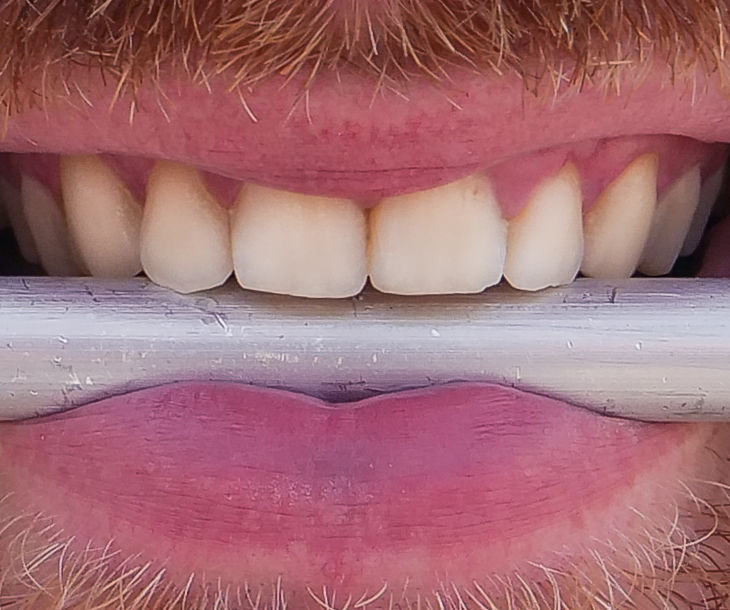 Teeth Headphone - Can You Hear With Your Teeth?