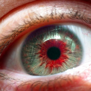 red eye 1.jpg