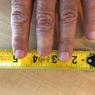 Missing finger tip.jpg