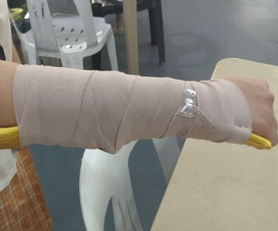 Rollable Splint