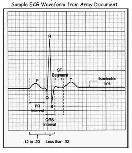 Source of the ECG Signal