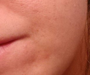 Reducing Acne Test