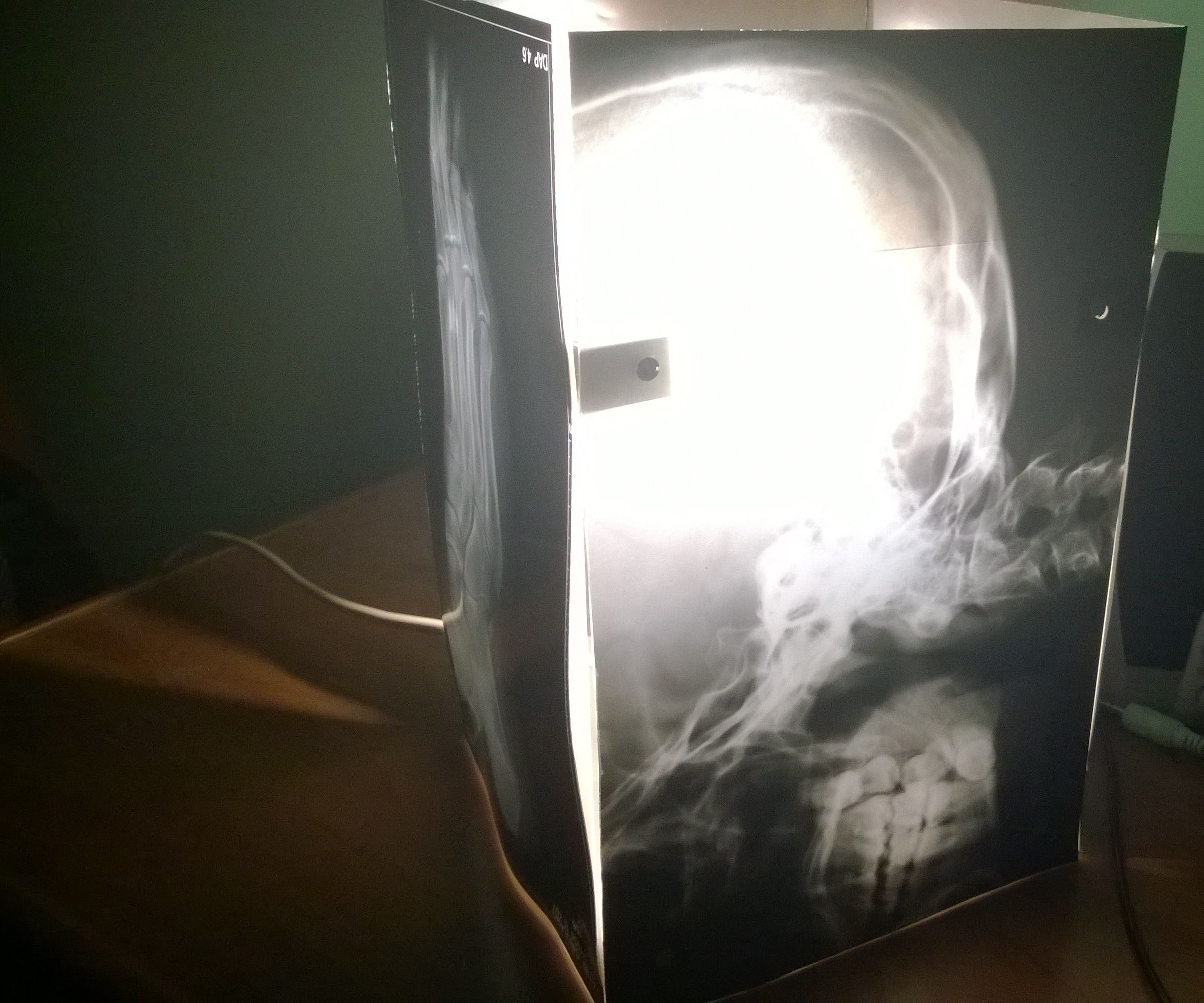 Radiographic Lamp