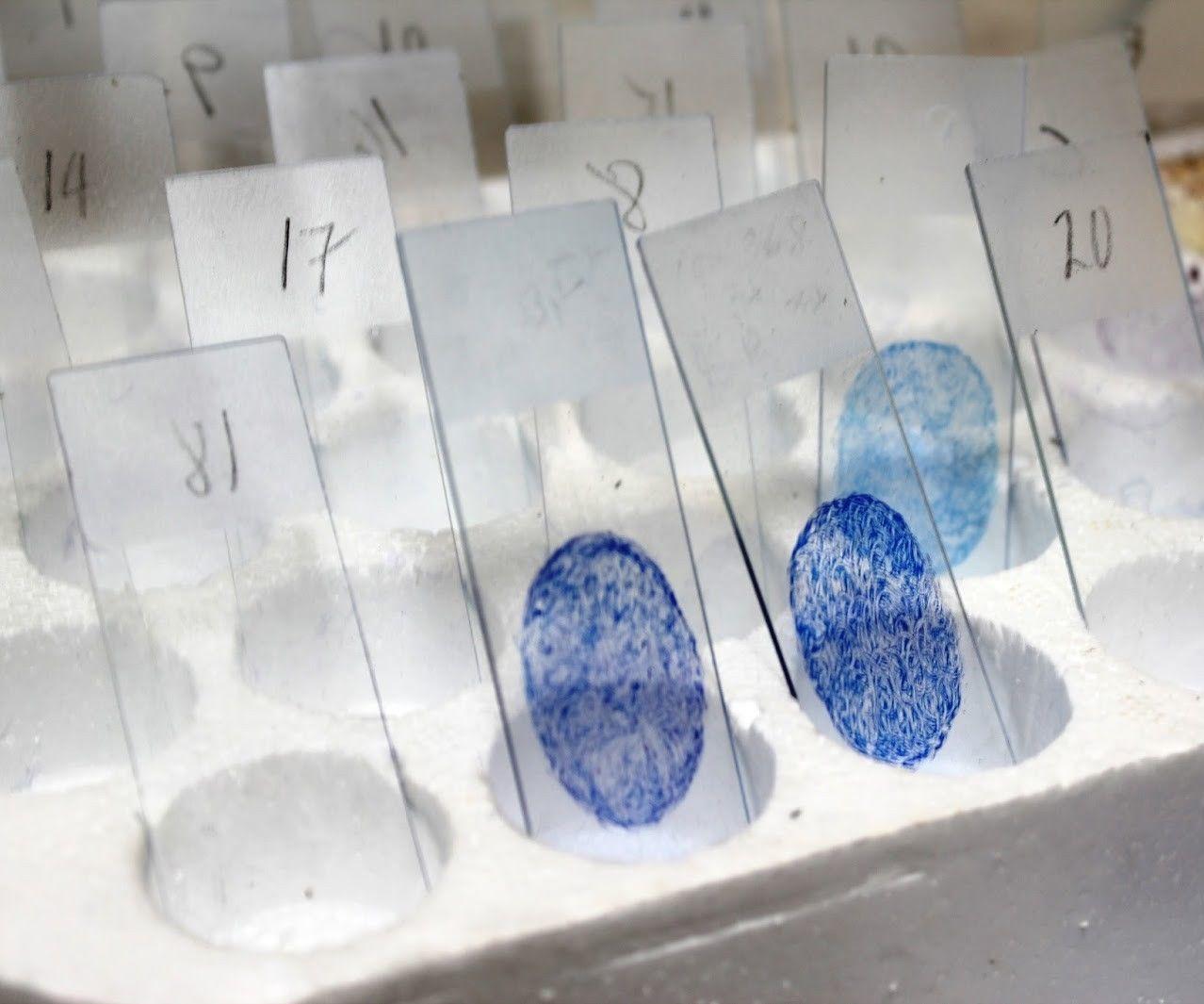 How to make a Ziehl Neelsen Sputum Smear slide