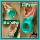The First 3D Printed Prosthetic Stretched Lobe