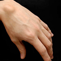 Painless Ganglion Removal